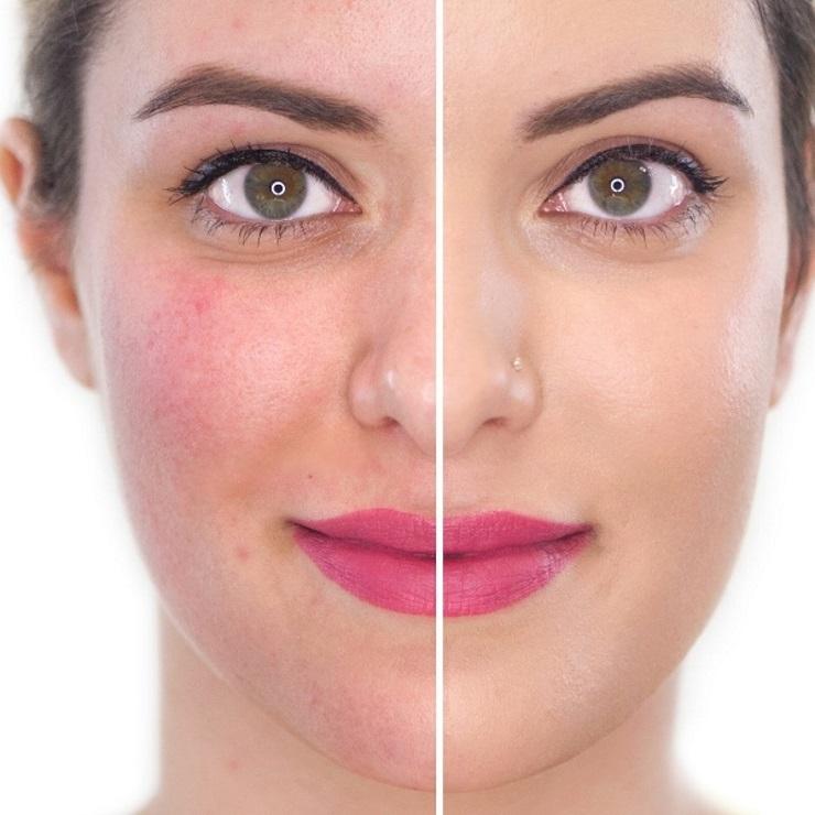 چه چیزی سبب حساسیت پوست می شود